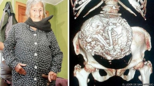 Hatvan éve hordozza magában a halott magzatát