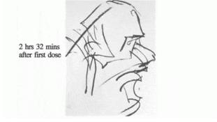 Így rajzol egy művész az LSD hatása alatt