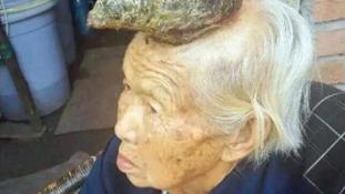 Szarva nőtt a feje közepén a kínai asszonynak