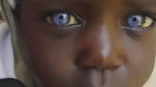 Afrika gyöngy-szeme