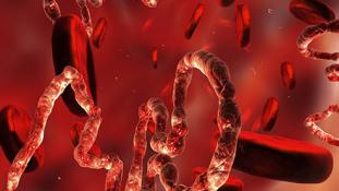 Feltámadt az Ebola Guineában, szinte egy teljes családot irtott ki a vírus