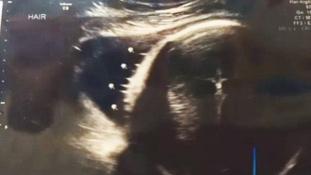 Isteni jel: Jézus tűnt fel az ultrahangon