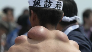 A dicsőség púpjai – a kemény munka látványos ára Japánban