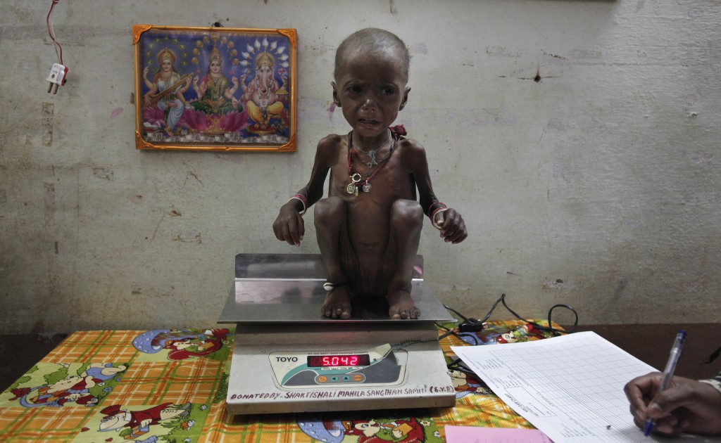 About-48-percent-Indian-children-stunted-1024x630