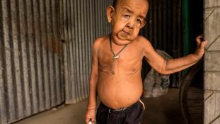 Az igazi Benjamin Button: 80 éves testben él a négyéves