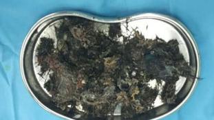 A haját ette – szőrgolyókat műtöttek ki egy 5 éves gyomrából