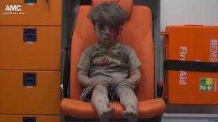 Ő a háború arca – így mentették ki a négyéves Omránt