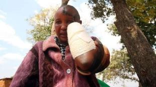 Levágta a felesége kezét, mert nem szült neki gyereket
