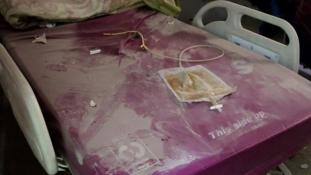 Szétbombázták Aleppó legnagyobb kórházát