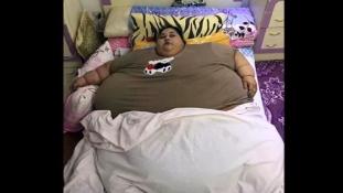3 hét alatt 100 kilót fogyott a világ legkövérebb nője