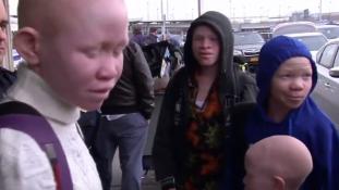 Amerikában vannak a Tanzániában megcsonkított albínó gyerekek