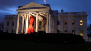 AIDS-világkongresszus Párizsban – 7 milliárd dollár hiányzik