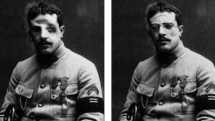 100 éve ért véget – Plasztika az első világháborúban